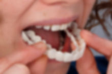 Snap on Smile tray.jpg