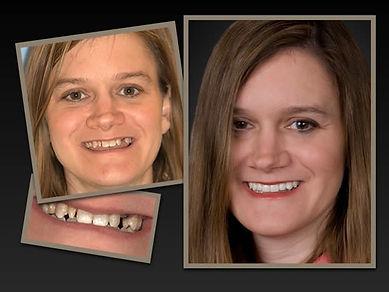 full face implant dentistry