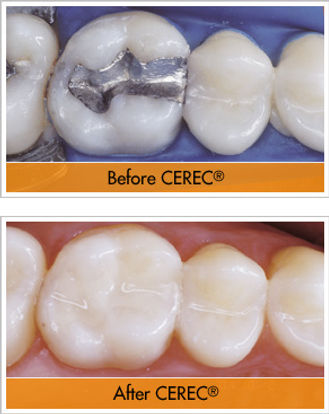 Cerec before and after.jpg