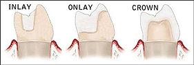 onlays and inlays