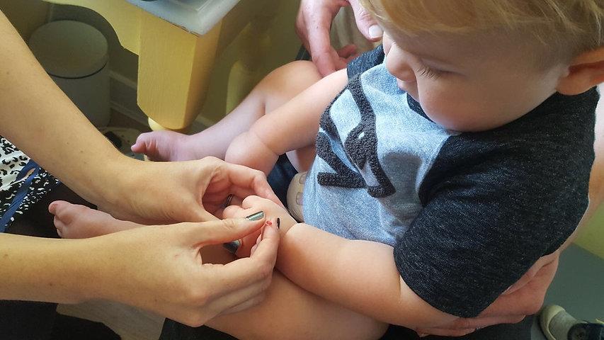 baby acupuncture ralph.JPG