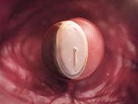 Fetal devlopment at 4 weeks