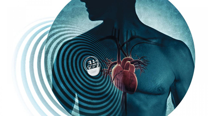 Cybersecurity Guidance For Heart Patients With Pacemakers