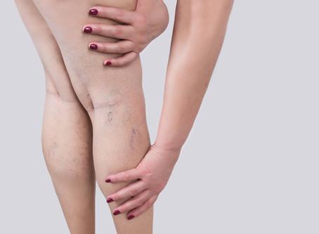 Sintoma: formigamento nas pernas
