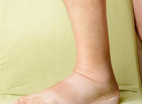 Síndrome pós-trombótica: quando o inchaço não melhora