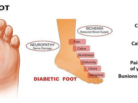 Choosing Shoes for Diabetic Patients