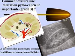 4_-_Savoir_diagnostiquer_une_dilatation_
