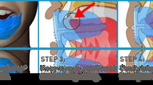 La importancia del desarrollo de los maxilares en el niño en crecimiento