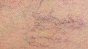 Telangiectasia. There is hope.