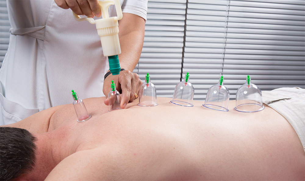Acupuncture with Cupping Therapy