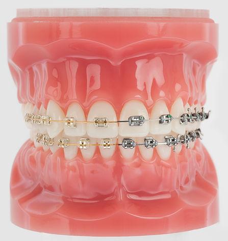 Gold braces.jpg