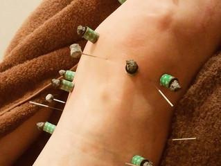 膝の痛みに鍼灸
