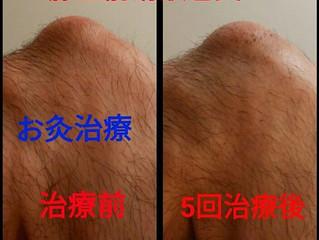 膝のお灸治療*途中経過*
