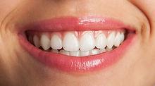 close-up-de-um-sorriso-perfeito_1149-102