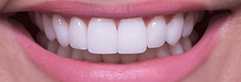 lentes-de-contato-dental.png