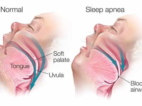 Sleep Apnea of Auto CPAP
