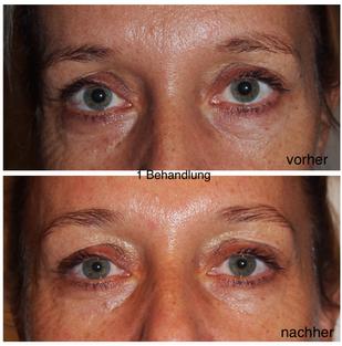 Hautstraffung  Skin Tightening