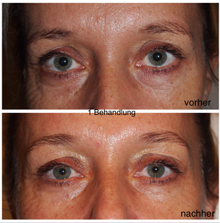 Hautstraffung  Skin Tightening