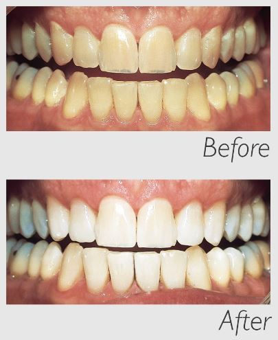 Philips Zoom Whitening Before and After