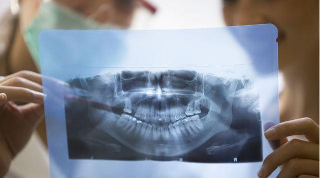Dental OPG X-ray