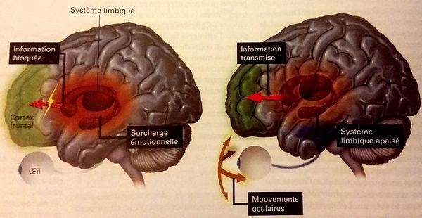 Processus neuronaux activés dans le traumatisme