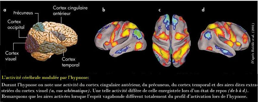 L'activitée cérébrale modulée par l'hypnose