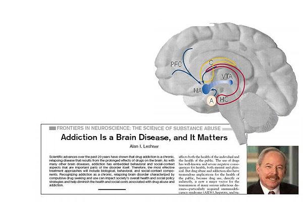 L'addiction, une pathologie du cerveau?