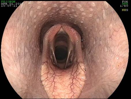 Chronic Arytenoid Chondritis in a Horse
