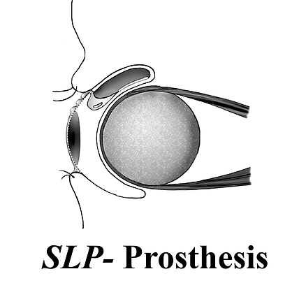 SLP, Self-lubricating, prosthesis, lubrication, artificial eye, ocular prosthesis, dry, prosthetic eye, Kelley