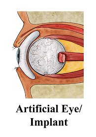 Artificial Eye, implant, vascularized, J. Kelley Associates, Kelley's Dictionary for Ocularistry, Julianne Kelley