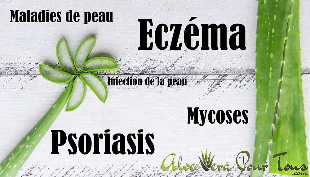 Eczéma, Psoriasis, Mycoses | Aloe Vera Forever | Maladies et infections de la peau