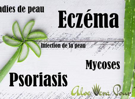 Traiter et soulager Eczéma, Psoriasis, Mycoses avec l'aloe vera