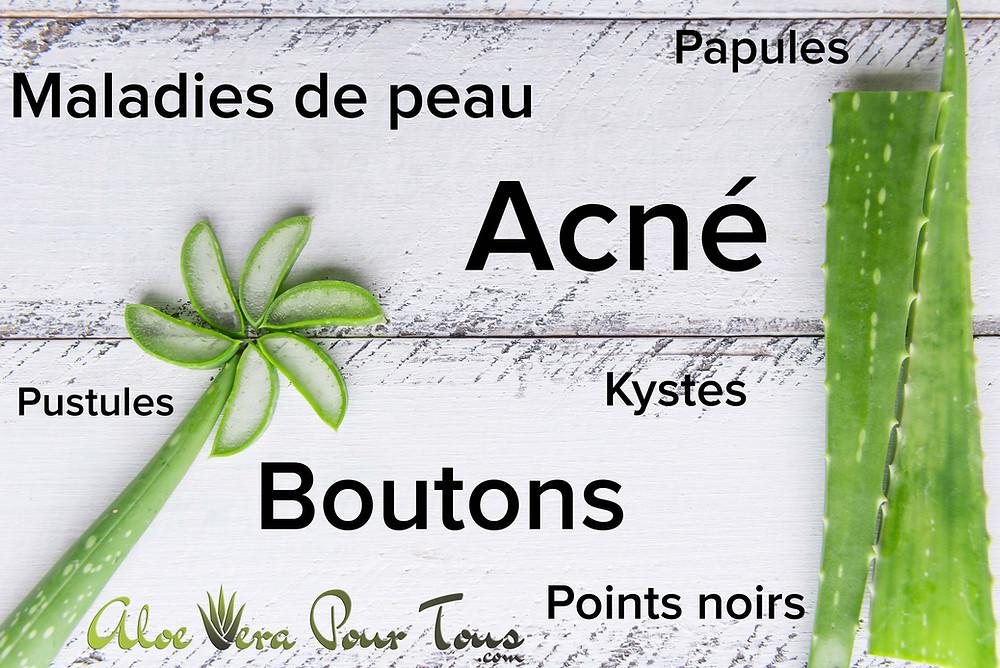 Traiter l'acné avec l'aloe vera