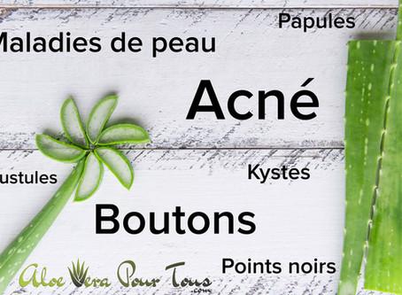 Comment soigner l'acné grâce à l'Aloe Vera ?