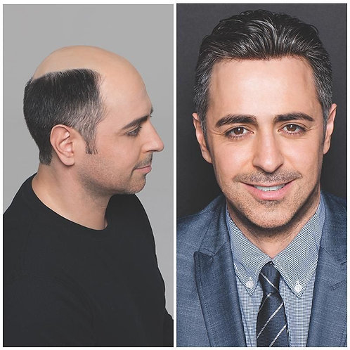 Hair Replacement course