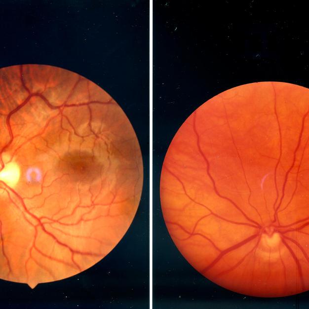 Le fond d'œil expliqué par les ophtamologistes de l'Hôpital de Saint-Germain-en-Laye