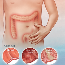 Antibiotics associated with increased risk of inflammatory bowel disease