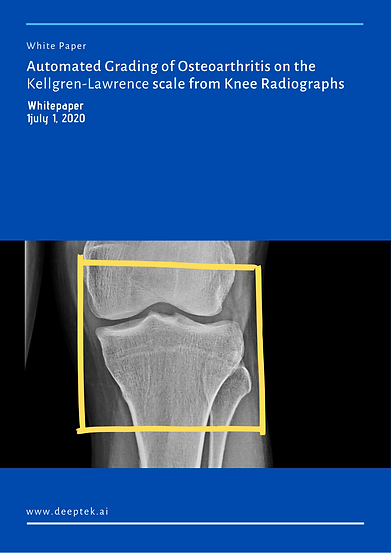 Automated Grading of Osteoarthritis on t