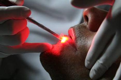 Laser, laserterapia na Odontologia, Odontologia Oncológica