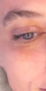 Lessen crow's feet & deep wrinkles around eyes.