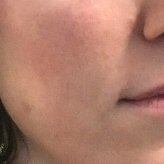 After one treatment:    Shrunk skin pores  Firmer skin  Reduced smile lines  Lifted sag  Smoother skin