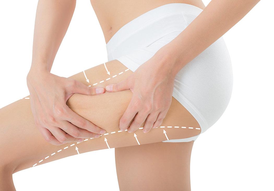 G5 INFARSOUND FAT REDUCTION TREATMENT