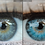 Thumbnail: Eye Color Lightroom Brushes