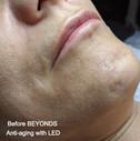 B4 Anti-aging w/ LED