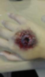 Herida de bala