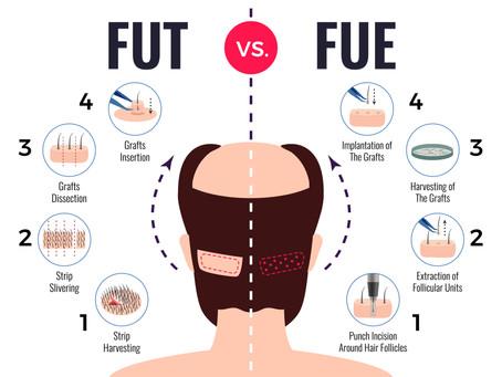 Μέθοδος Μεταμόσχευσης Μαλλιών FUE