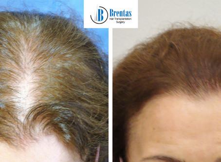 Μεταμόσχευση Μαλλιών σε γυναίκες