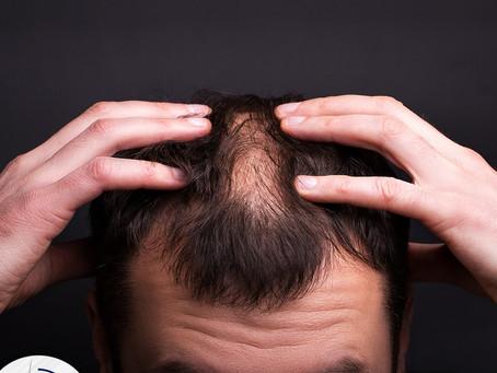 Ενημέρωση για τη μεταμόσχευση μαλλιών