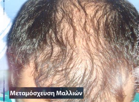 Η Μεταμόσχευση Μαλλιών σε νεαρές ηλικίες για άνδρες και γυναίκες