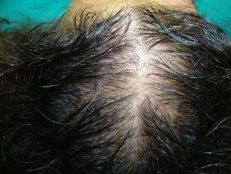 Επιλογή μεθόδου μεταμόσχευσης μαλλιών